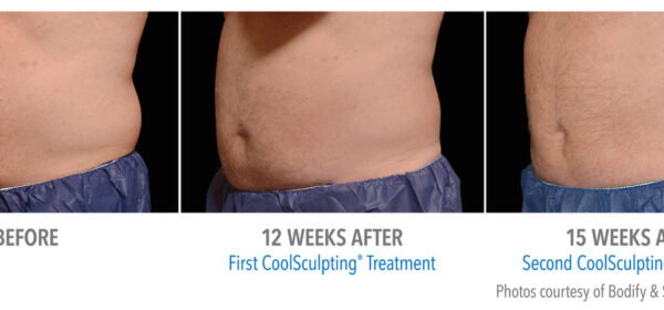 before and after images of cool sculpting session