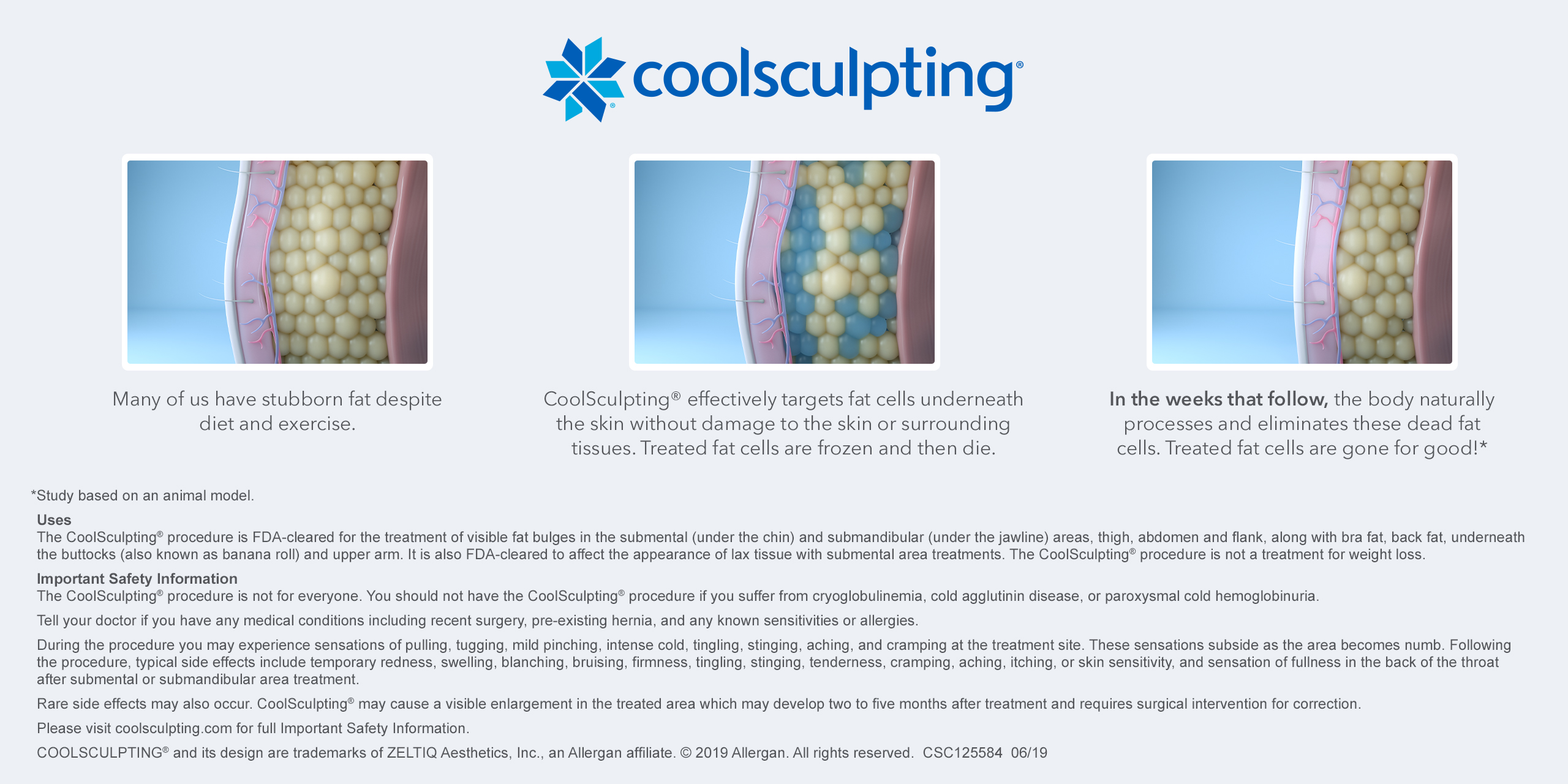 cool sculpting illustration