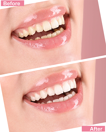 before and after pics of teeth